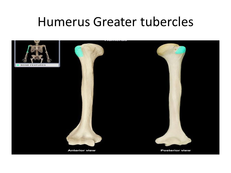 Humerus Greater tubercles