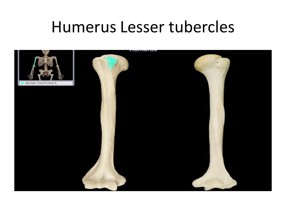 Humerus Lesser tubercles