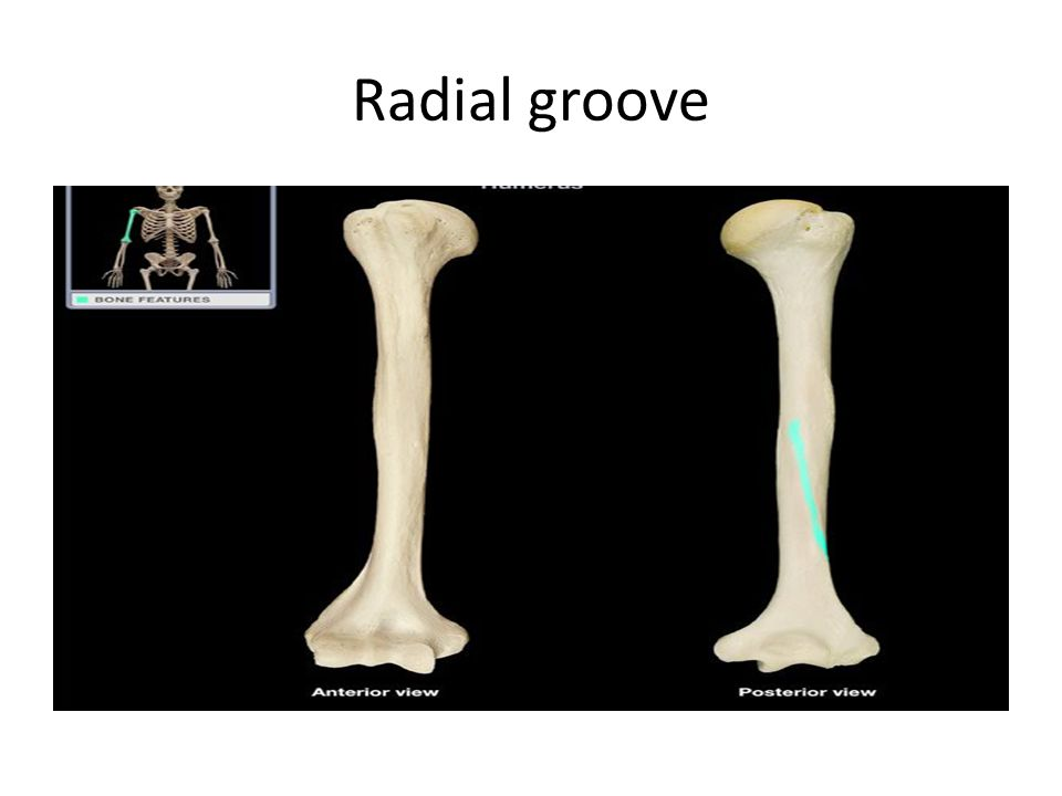 Radial groove