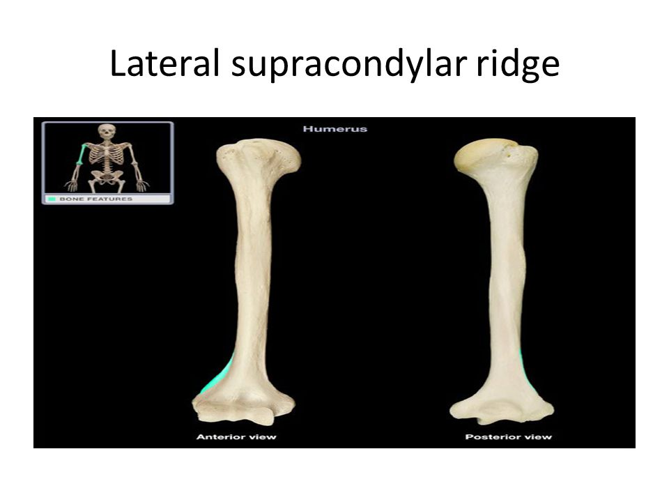 Lateral supracondylar ridge