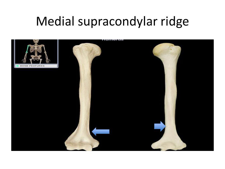 Medial supracondylar ridge