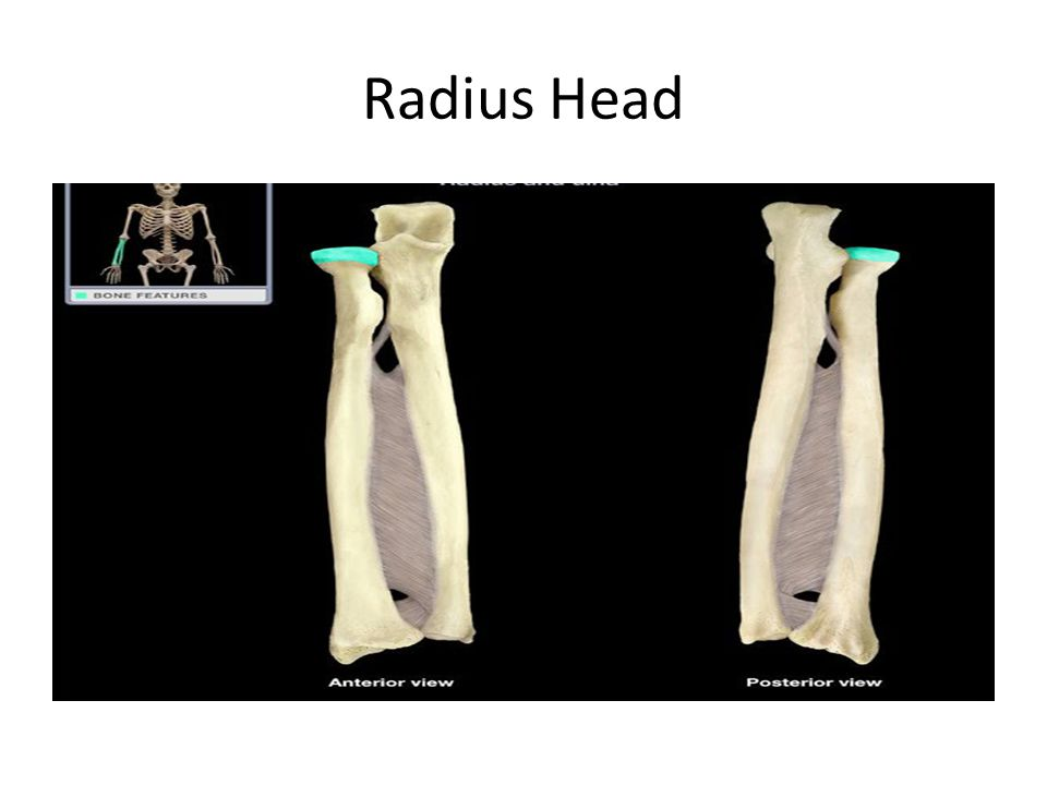 Radius Head
