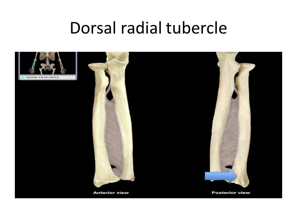 Dorsal radial tubercle