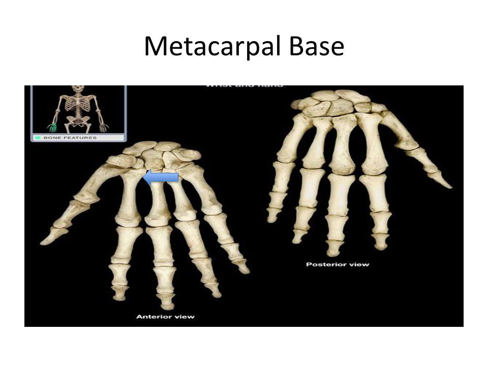 Metacarpal Base