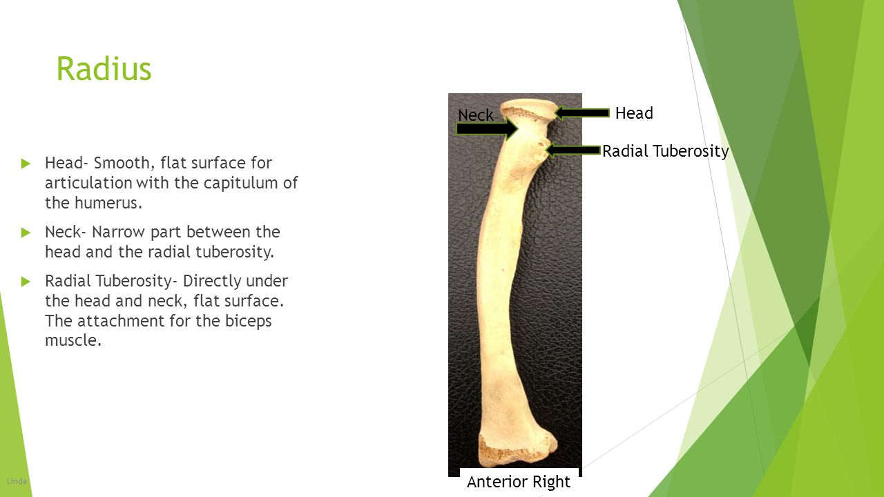 Radius  Head- Smooth, flat surface for articulation with the capitulum of the humerus.  Neck- Narrow part between the head and the radial tuberosity