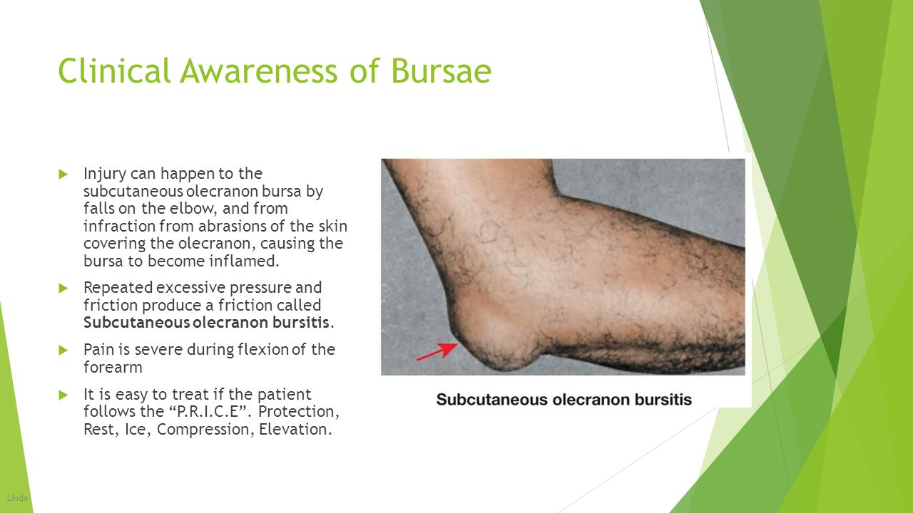 Clinical Awareness of Bursae  Injury can happen to the subcutaneous olecranon bursa by falls on the elbow, and from infraction from abrasions of the