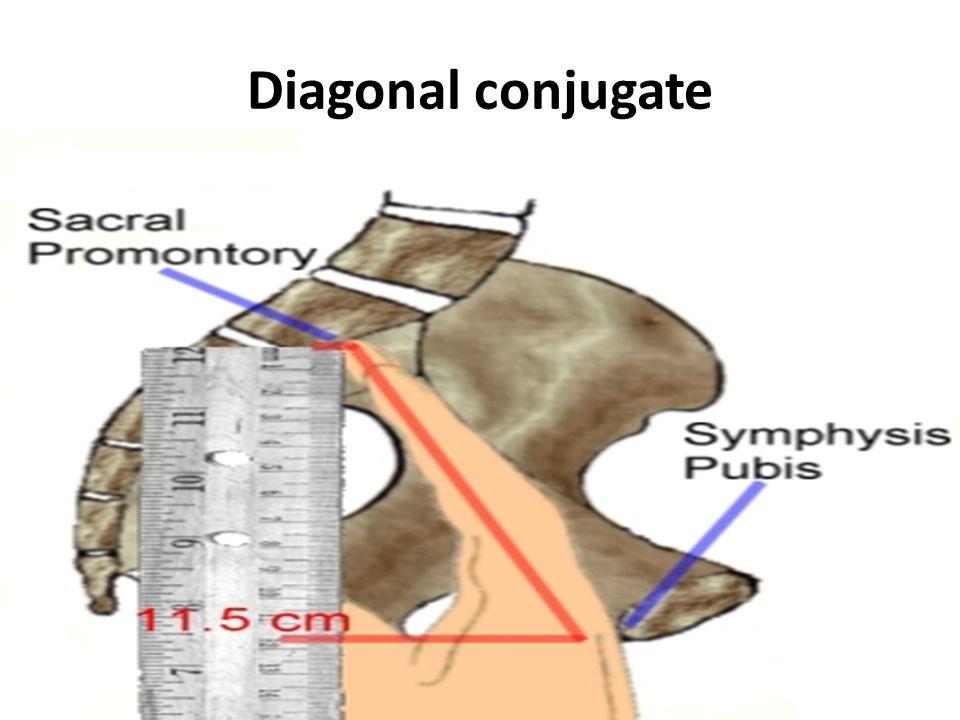 Diagonal conjugate