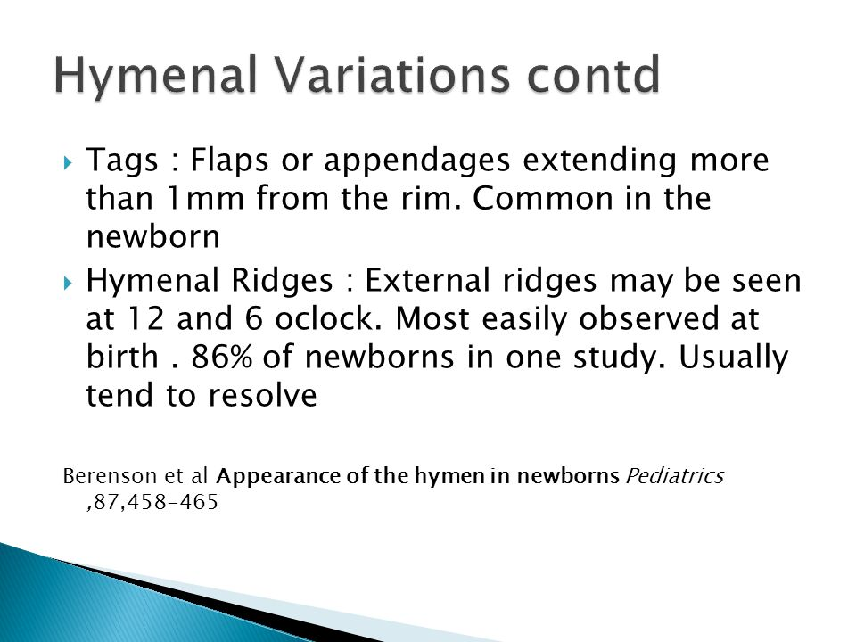  Tags : Flaps or appendages extending more than 1mm from the rim.