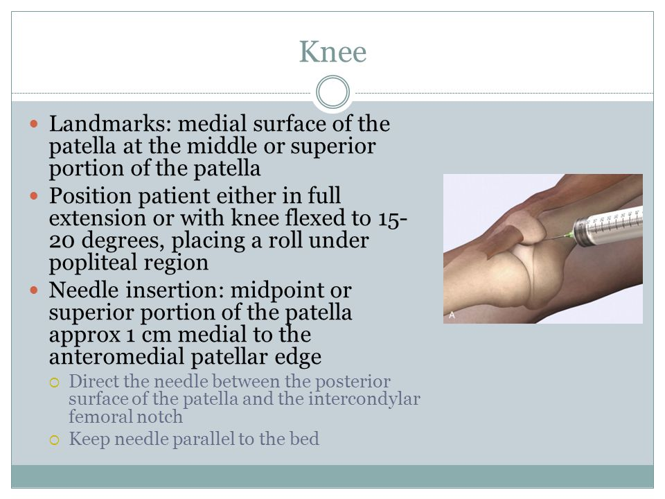 Knee Landmarks: medial surface of the patella at the middle or superior portion of the patella Position patient either in full extension or with knee