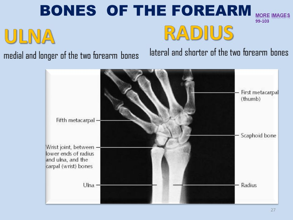 27 BONES OF THE FOREARM lateral and shorter of the two forearm bones