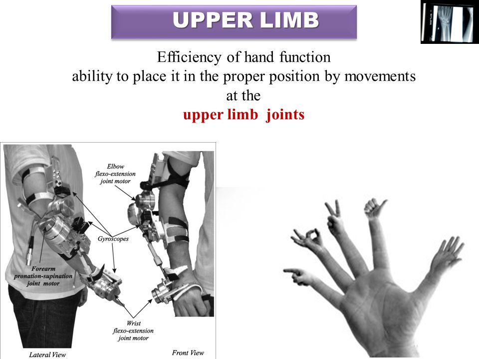 associated with lateral aspect of the lower portion of the neck thoracic wall Suspended from the trunk by muscles & a small skeletal articulation between clavicle & sternum : sternoclavicular joint 4 UPPER LIMB