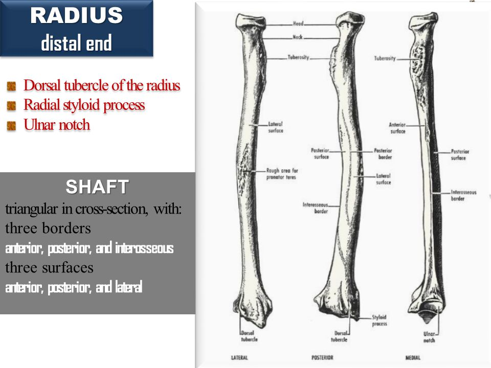 32 RADIUS distal end RADIUS Dorsal tubercle of the radius Radial styloid process Ulnar notch Dorsal tubercle of the radius Radial styloid process Ulna