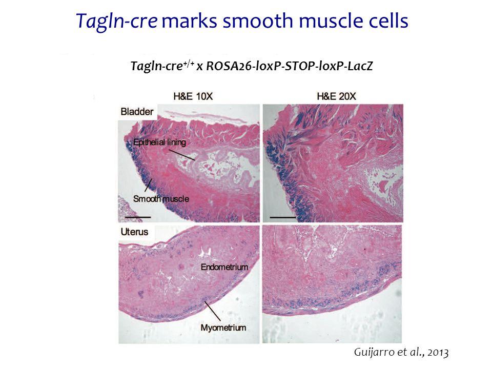 Tagln-cre marks smooth muscle cells Guijarro et al., 2013 Tagln-cre +/+ x ROSA26-loxP-STOP-loxP-LacZ