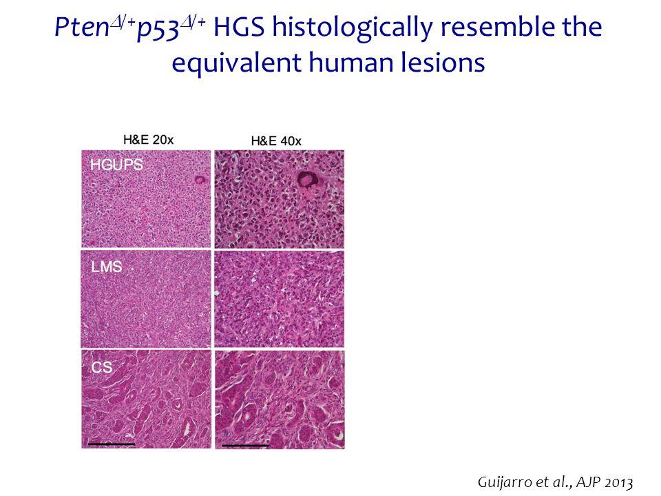 Pten  /+ p53  /+ HGS histologically resemble the equivalent human lesions Guijarro et al., AJP 2013
