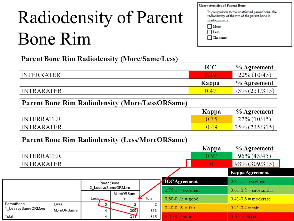 Radiodensity of Parent Bone Rim Kappa Agreement 0.81-1 = excellent 0.61-0.8 = substantial 0.41-0.6 = moderate 0.21-0.4 = fair 0-0.2 = slight Parent Bone Rim Radiodensity (More/Same/Less) ICC% Agreement INTERRATER0.3922% (10/45) Kappa% Agreement INTRARATER0.4773% (231/315) ICC Agreement 0.75-1 = excellent 0.60-0.75 = good 0.40-0.59 = fair 0-0.39 = poor Parent Bone Rim Radiodensity (More/LessORSame) Κappa% Agreement INTERRATER0.3522% (10/45) INTRARATER0.4975% (235/315) Parent Bone Rim Radiodensity (Less/MoreORSame) Κappa% Agreement INTERRATER0.9796% (43/45) INTRARATER098% (309/315)