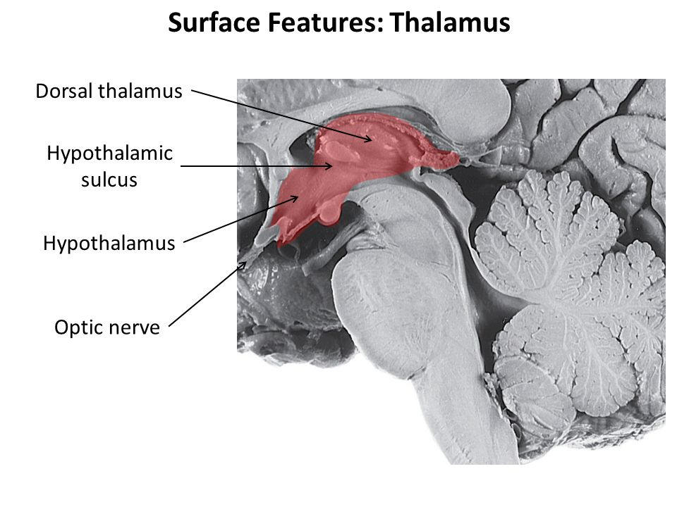 Surface Features: Thalamus Dorsal thalamus Hypothalamic sulcus Hypothalamus Optic nerve