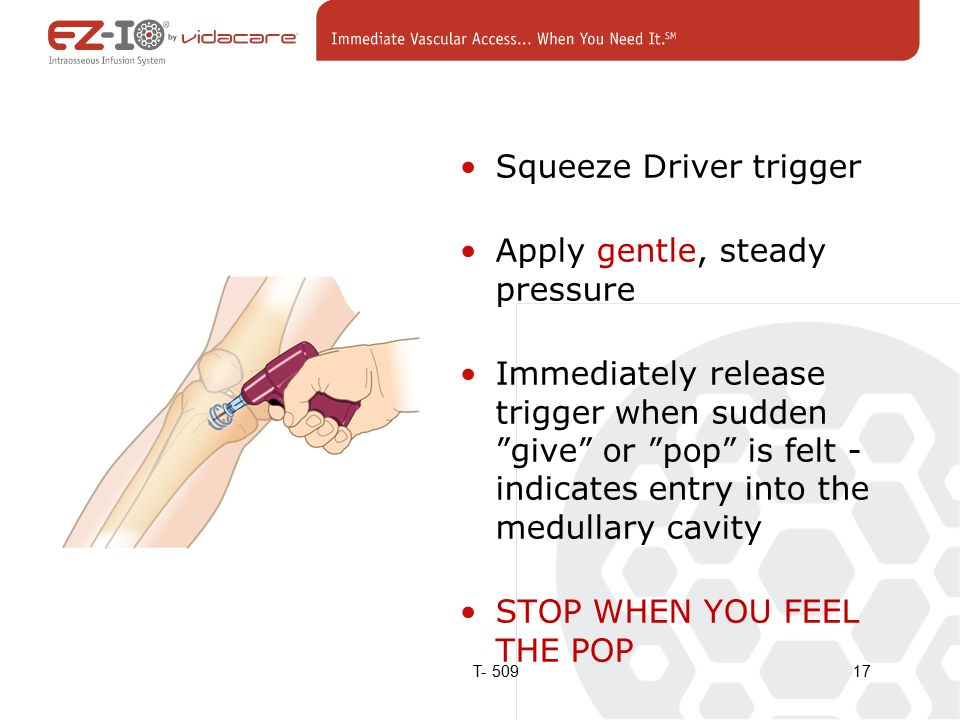 Squeeze Driver trigger Apply gentle, steady pressure Immediately release trigger when sudden give or pop is felt - indicates entry into the medullary cavity STOP WHEN YOU FEEL THE POP 17T- 509