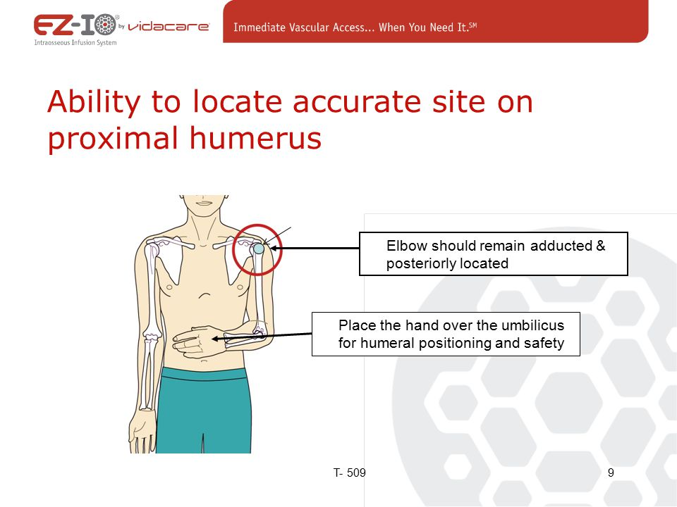 Elbow should remain adducted & posteriorly located Place the hand over the umbilicus for humeral positioning and safety Ability to locate accurate site on proximal humerus 9T- 509