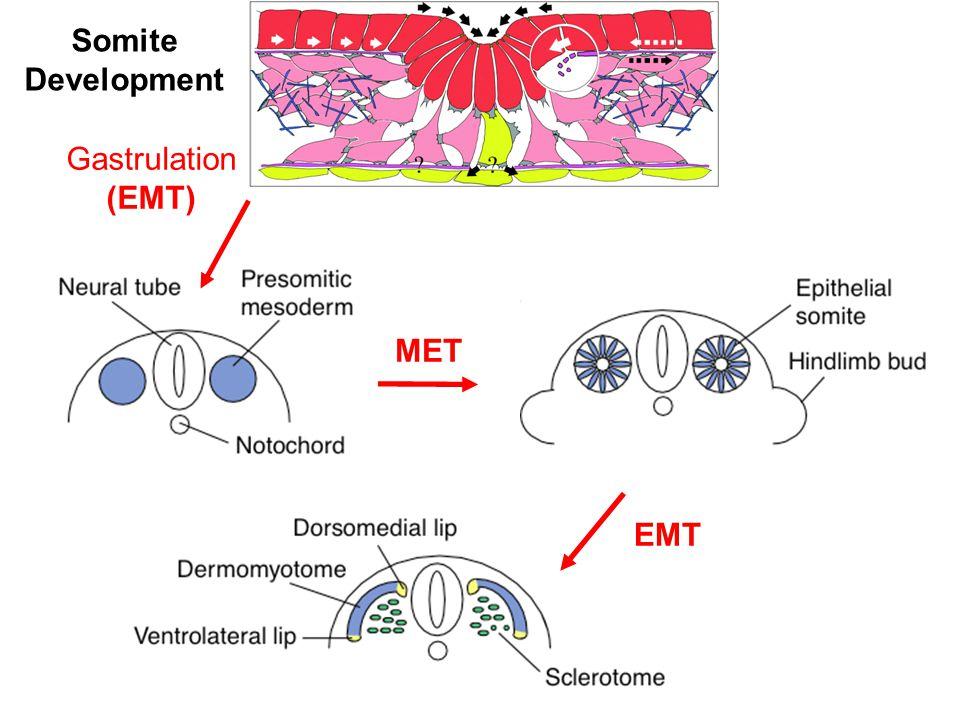 Gastrulation (EMT) MET EMT Somite Development
