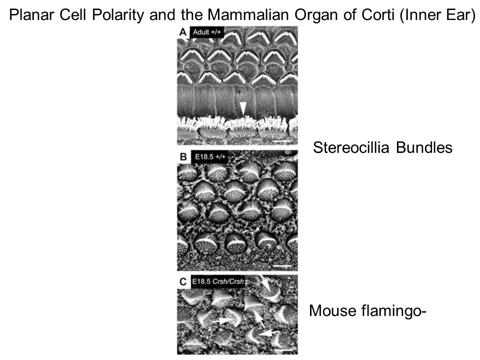 Planar Cell Polarity and the Mammalian Organ of Corti (Inner Ear) Stereocillia Bundles Mouse flamingo-