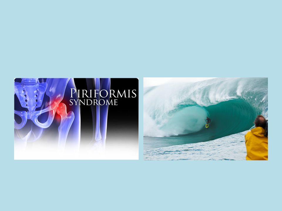 Piriformis Syndrome Situation where the piriformis muscle is compressing the sciatic nerve resulting in sciatic neuropathy
