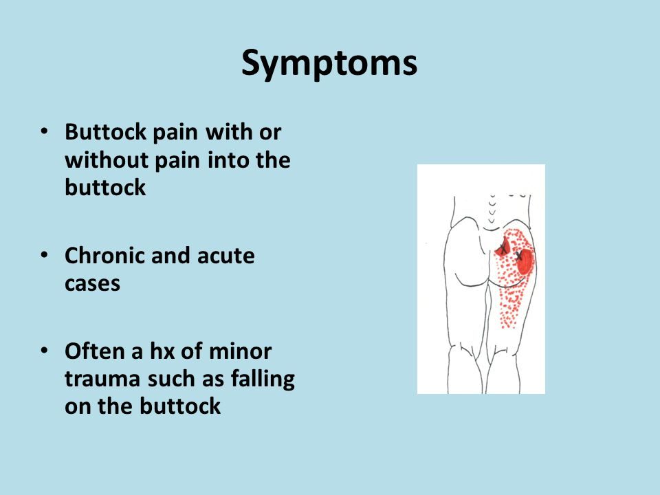 Symptoms Buttock pain with or without pain into the buttock Chronic and acute cases Often a hx of minor trauma such as falling on the buttock