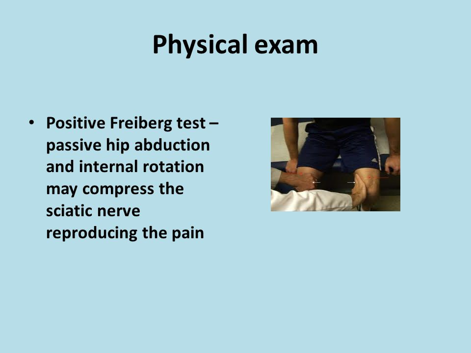 Physical exam Positive Freiberg test – passive hip abduction and internal rotation may compress the sciatic nerve reproducing the pain