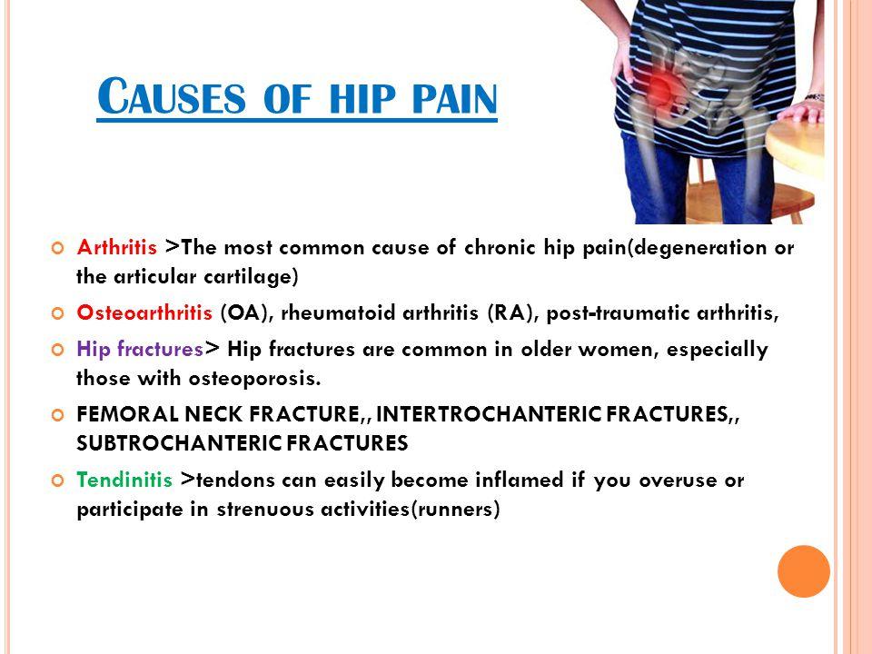 C AUSES OF HIP PAIN Arthritis >The most common cause of chronic hip pain(degeneration or the articular cartilage) Osteoarthritis (OA), rheumatoid arth