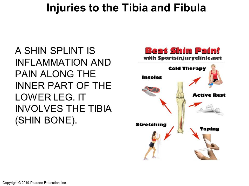Copyright © 2010 Pearson Education, Inc. Injuries to the Tibia and Fibula A SHIN SPLINT IS INFLAMMATION AND PAIN ALONG THE INNER PART OF THE LOWER LEG