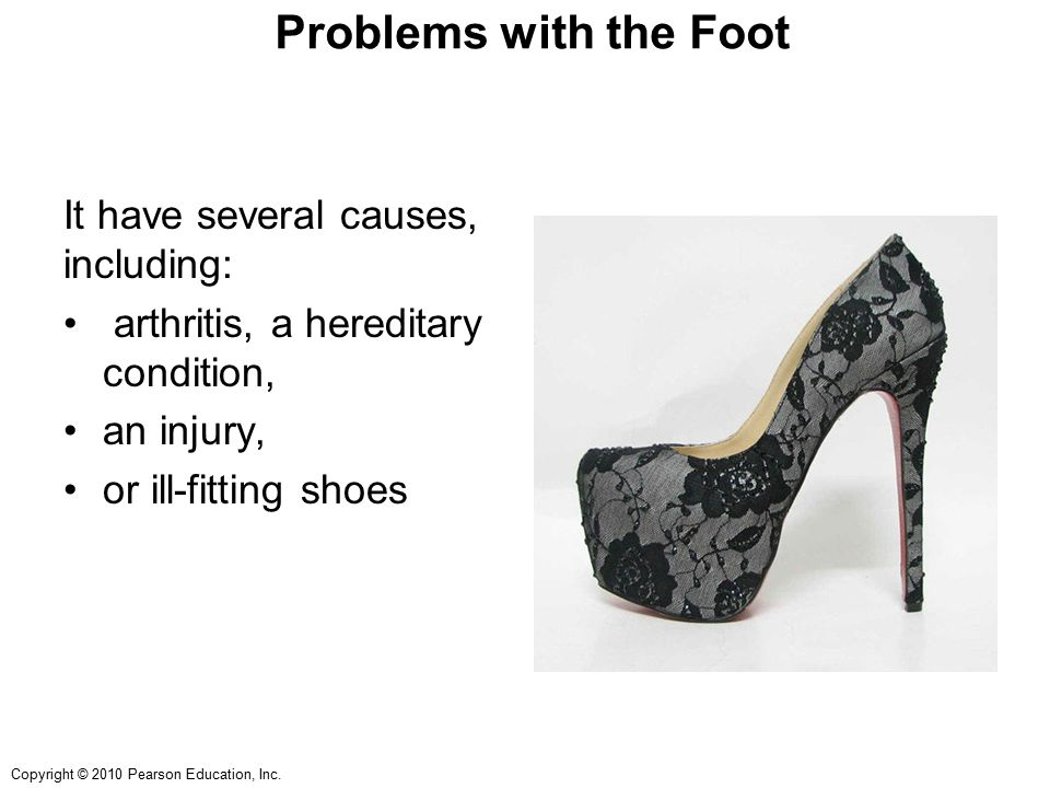 Copyright © 2010 Pearson Education, Inc. Problems with the Foot It have several causes, including: arthritis, a hereditary condition, an injury, or il