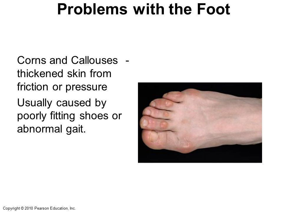 Copyright © 2010 Pearson Education, Inc. Problems with the Foot Corns and Callouses - thickened skin from friction or pressure Usually caused by poorl