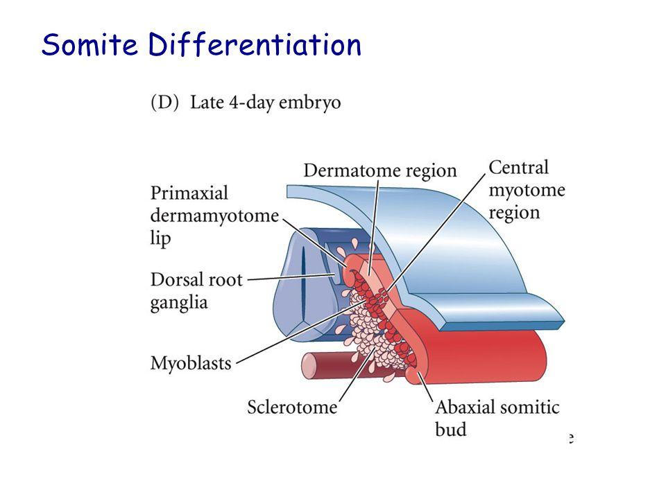 Somite Differentiation