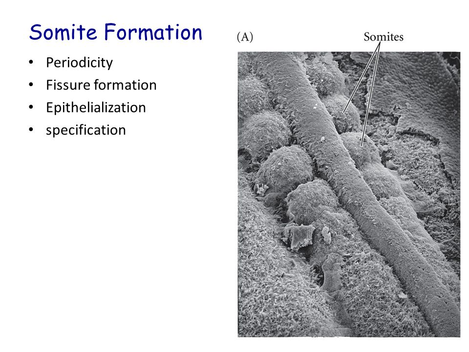 Somite Formation Periodicity Fissure formation Epithelialization specification