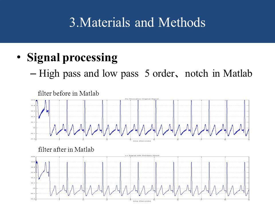 Signal processing – High pass and low pass 5 order 、 notch in Matlab 3.Materials and Methods filter before in Matlab filter after in Matlab