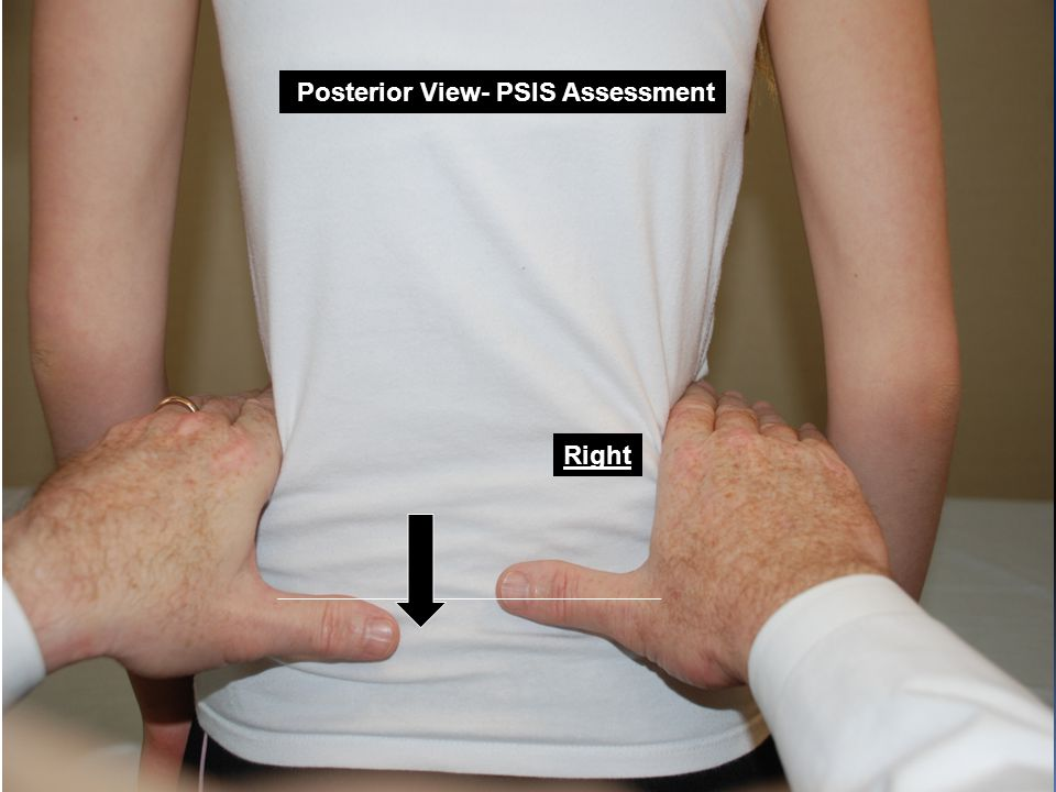 Posterior View- PSIS Assessment Right