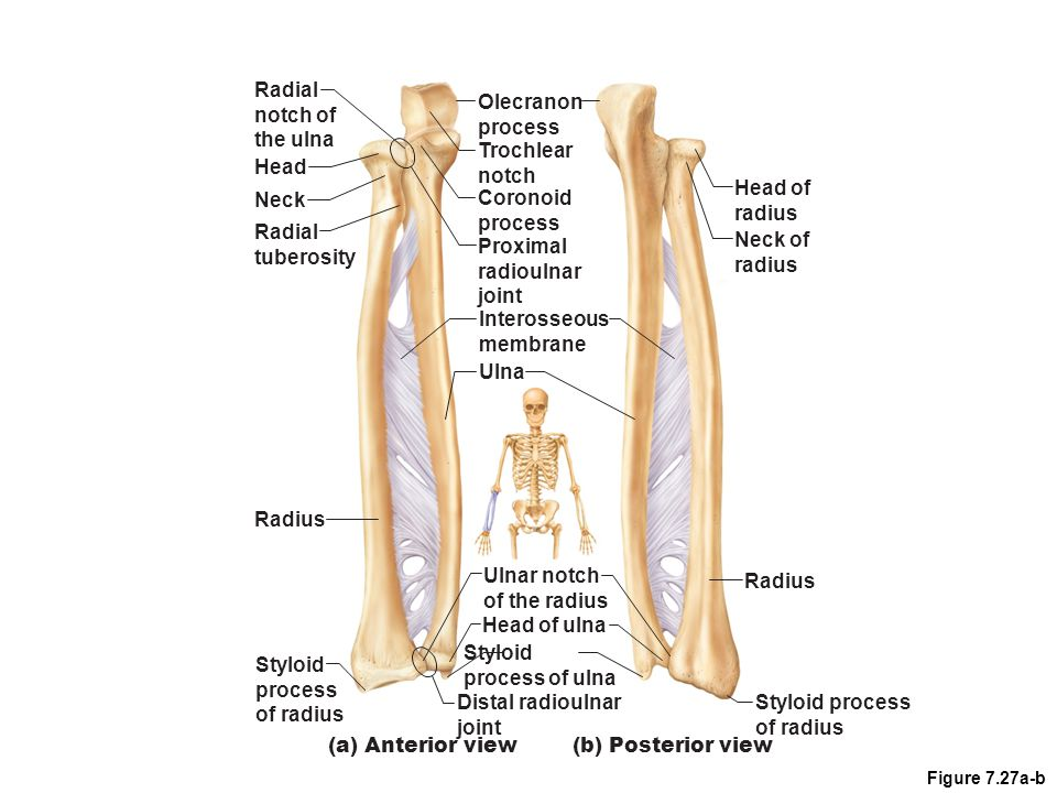 Ulna Slightly longer than radius forming elbow joint 2 processes – olecranon and coronoid  separated by notch