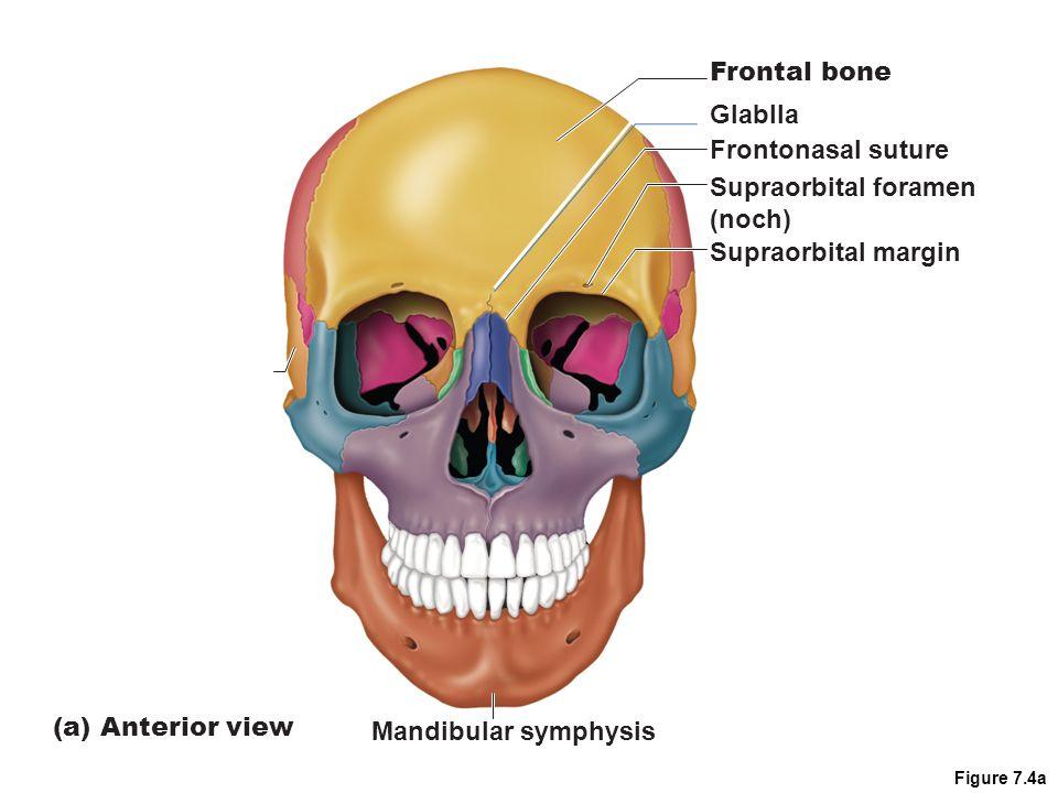Cranium 2.