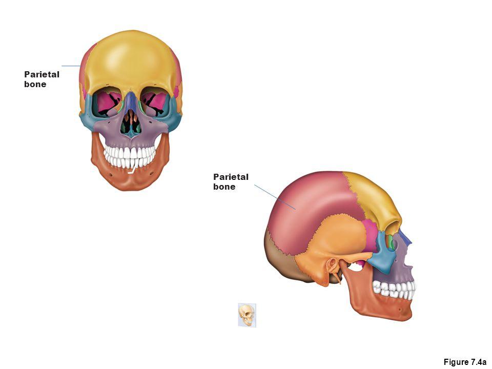 Cranium 3.