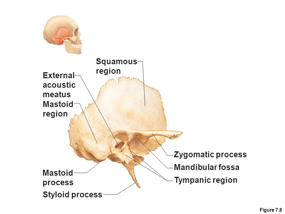Cranium 5.