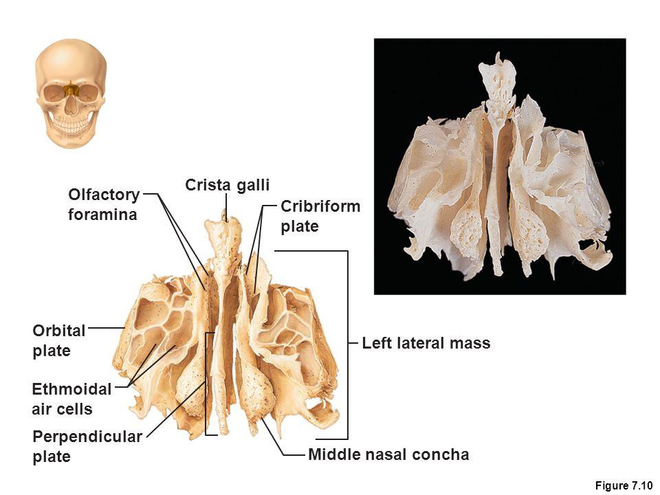 Cranium 7.