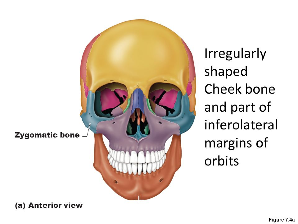 Figure 7.4a Zygomatic bone (a) Anterior view Irregularly shaped Cheek bone and part of inferolateral margins of orbits