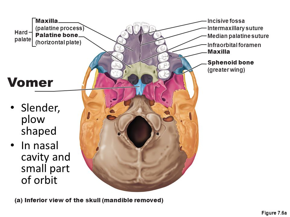 Figure 7.14a Inferior nasal concha Nasal bone Thin, curved bones in nasal cavity Wall of nasal cavity Inferior Nasal Conchae