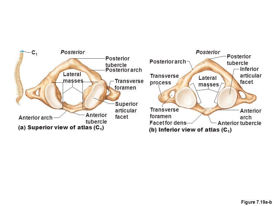 C2C2 Posterior Dens (c) Superior view of axis (C 2 ) Inferior articular process Body Superior articular facet Transverse process Pedicle Lamina Spinous process Figure 7.19c