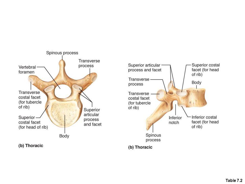 Figure 7.20b Transverse process Spinous process Superior articular process Transverse costal facet (for tubercle of rib) Body Intervertebral disc Inferior costal facet (for head of rib) Inferior articular process (b) Thoracic vertebrae