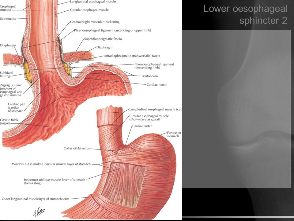 Lower oesophageal sphincter 2