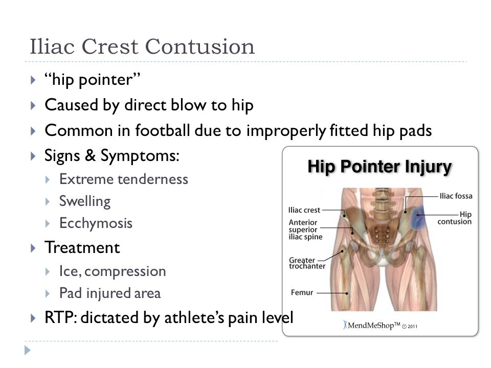 Iliac Crest Contusion  hip pointer  Caused by direct blow to hip  Common in football due to improperly fitted hip pads  Signs & Symptoms:  Extreme tenderness  Swelling  Ecchymosis  Treatment  Ice, compression  Pad injured area  RTP: dictated by athlete's pain level