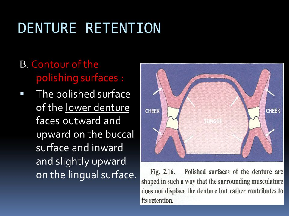 DENTURE RETENTION B. Contour of the polishing surfaces :  The polished surface of the lower denture faces outward and upward on the buccal surface an