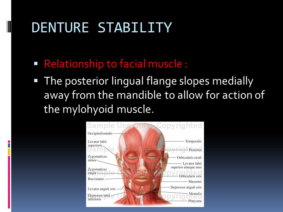 DENTURE STABILITY  Relationship to facial muscle :  The posterior lingual flange slopes medially away from the mandible to allow for action of the m