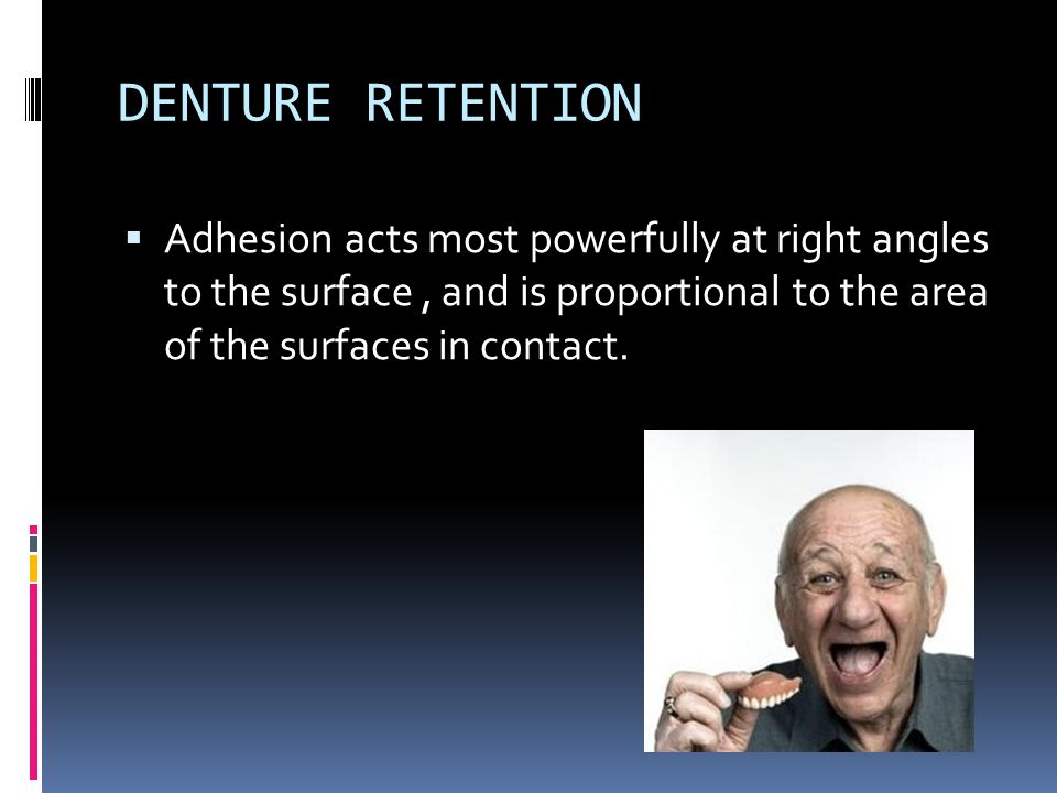 DENTURE SUPPORT  It is the resistance to vertical movement of the denture base toward the ridge.