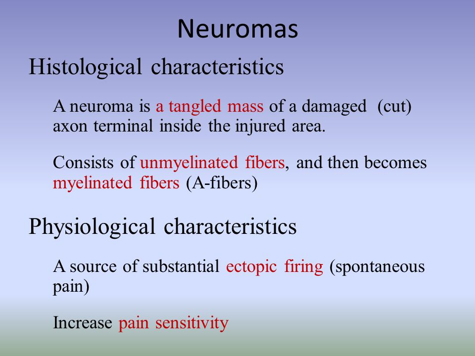 Neuromas Histological characteristics A neuroma is a tangled mass of a damaged (cut) axon terminal inside the injured area.